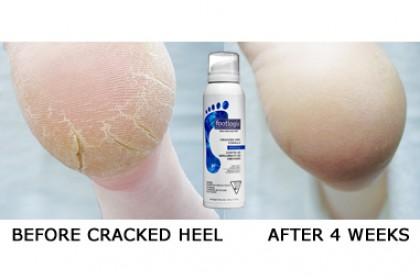 Footlogix Cracked Heel Formula #3+ 125ml