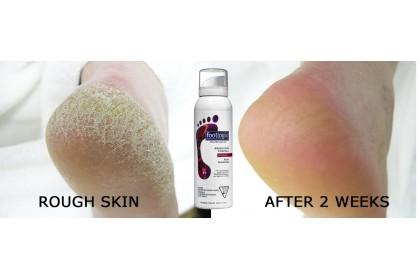 Footlogix Rough Skin Formula With Spiraleen #7+ 125ml
